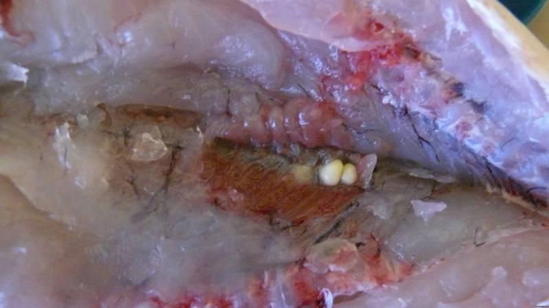 паразиты в позвоночнике человека
